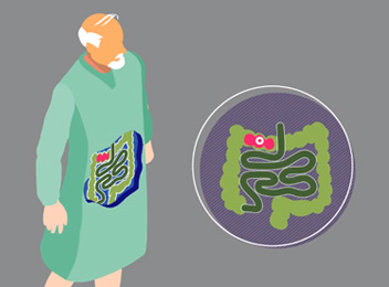 Find out why quickly and accurately determining the presence of C. difficile infection is important.